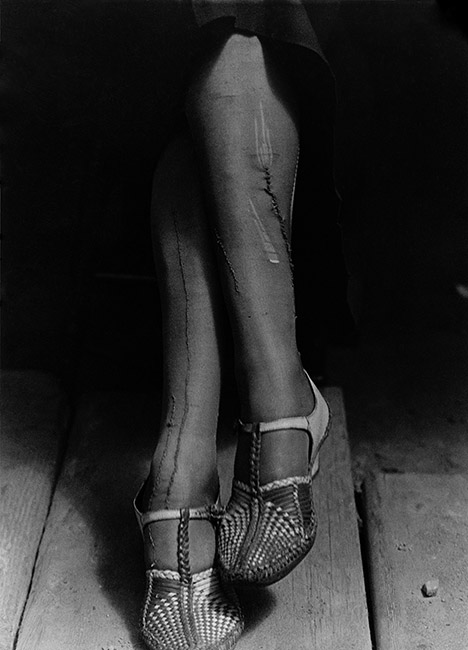 Dorothea Lange photo of crossed legs in mended stockings